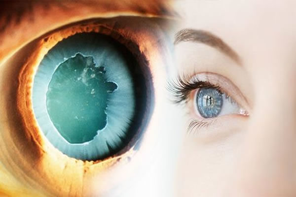 Glaucoma Elean opticians cyprus